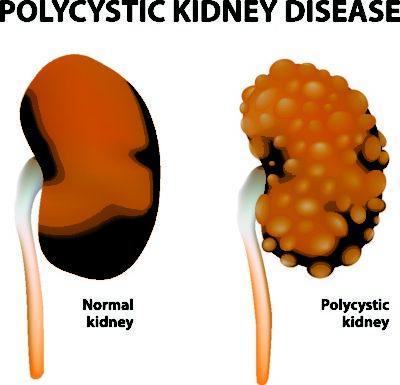 Polycystic Kidney